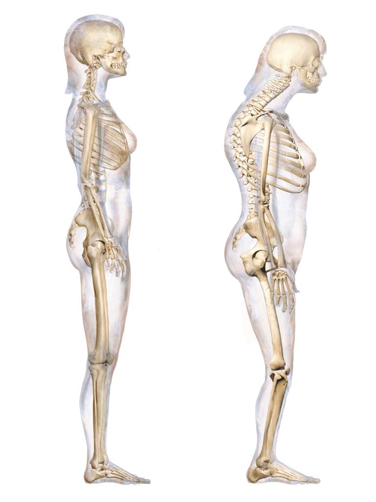 Kyphosis and Internal Rotation 10